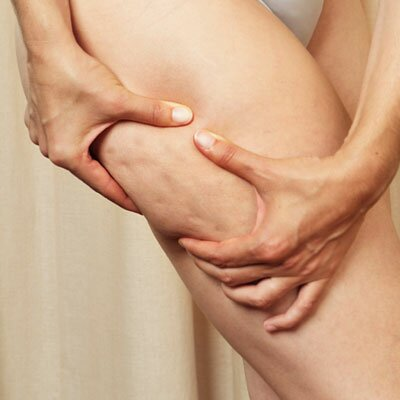 cellulite Inside Effective Allardt Cellulite Remedy Methods