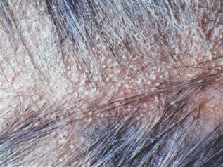 hair 126 01 What Is Seborrheic Dermatitis;