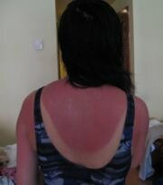 sunburn home remedy